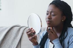 Acné chez les adolescents : les filles et les minorités ethniques davantage exposées à la détresse psychologique