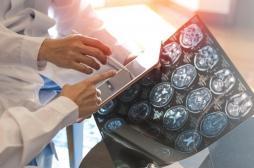 Sclérose en plaques : où en est la recherche ?