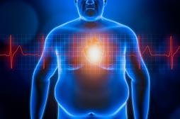 """Obésité : stop aux approches simplistes consistant à """"manger moins, bouger plus"""""""