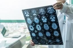 Syndrome de stress post-traumatique: des régions du cerveau affectées après une lésion traumatique