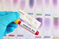 Le test antigénique disponible depuis samedi : quand et ou le faire ?