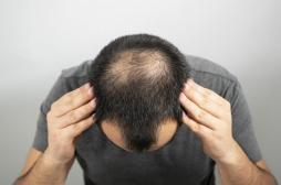 Covid-19 : les hommes chauves seraient plus à risque