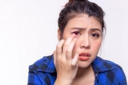 Kératite : voici pourquoi il faut toujours enlever ses lentilles de contact avant de prendre sa douche