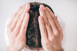 Pourquoi peut-on devenir chauve ?