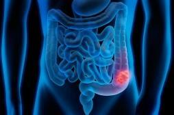 Mars bleu : comment se protéger au mieux du cancer colorectal?