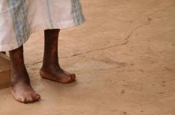 Lèpre : un traitement préventif réduit le nombre de cas au Maroc