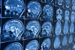 Etats-Unis : des chercheurs ont étudié 128 parties du cerveau pour comprendre le vieillissement