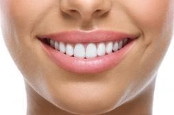 Un beau sourire augmente les chances de réussite professionnelle