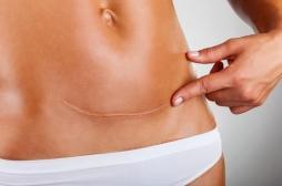 Grossesse : quand reprendre une vie sexuelle après une césarienne ?