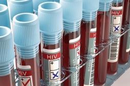 Méconnaissance de la maladie : un quart des jeunes se dit mal informé sur le sida