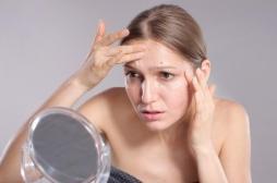 Vers un vaccin contre l'acné et ses troubles dépressifs associés