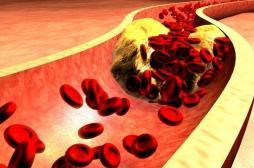 Hypercholestérolémie : traiter fortement le cholestérol ne suffit pas toujours