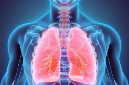 Le cancer du poumon au stade avancé pourrait se passer de la chimiothérapie