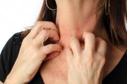 Le stress aggrave les maladies de peau