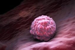 Parkinson: des cellules souches greffées dans le cerveau d'un malade au Japon