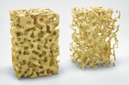 Un traitement anti-ostéoporotique, le Prolia, mis en cause de façon partiale