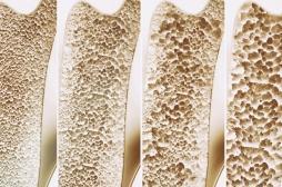 Ostéoporose: en agissant sur le microbiote, la chaleur solidifie les os