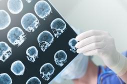 Une greffe de microbiote améliore l'état d'un patient atteint d'Alzheimer