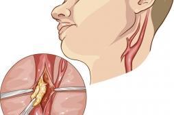 Patient hors norme : des chirurgiens découvrent deux veines jugulaires au lieu d'une