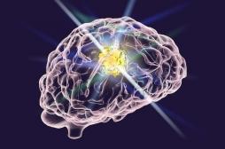 Cancer du cerveau : un nouveau traitement parvient à tuer les tumeurs les plus agressives
