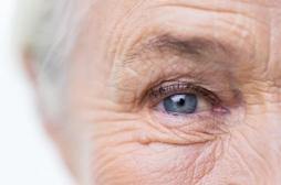 Cholestérol: au-delà de 75 ans, le bénéfice des statines diminue