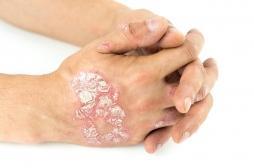 Psoriasis : une journée mondiale pour informer sur cette maladie méconnue