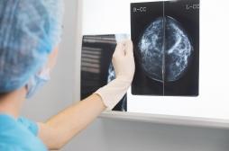 Un nouveau médicament capable de combattre les cancers du sein agressifs