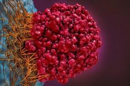 Androcur : les tumeurs du cerveau et le scandale des prescriptions hors AMM