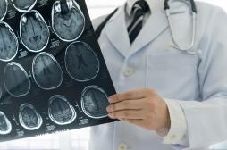 Androcur : 112 000 courriers envoyés pour alerter les patients du risque de tumeur cérébrale