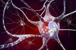 Parkinson: un traitement prometteur grâce aux cellules souches