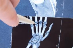 Polyarthrite, «orteil Covid» : l'imagerie confirme ces symptômes durables de la Covid-19