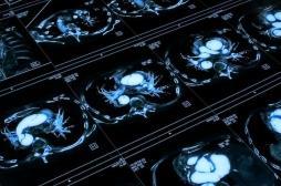 Anévrisme et dissection aortique augmentés par un antibiotique