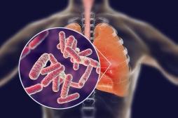 La pneumonie causée par une bactérie est la plus dangereuse pour le cœur