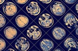 Big Data : l'inflammation aggrave le risque de Parkinson et sa réduction le réduit