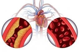 Hypertension artérielle : seulement moins d'un malade sur 2 est correctement traité