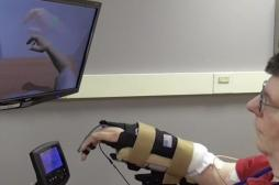 Un tétraplégique peut  bouger son bras grâce à une neuroprothèse