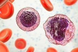 Cancer du sang : un gène identifié comme oncogène dans le lymphome B