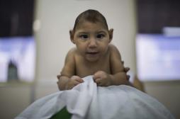 Zika : des bébés ont développé une microcéphalie après la naissance