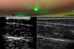 La première échographie laser réalisée à distance grâce aux ultrasons