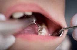 La MIH : une maladie des dents de l'enfant encore méconnue