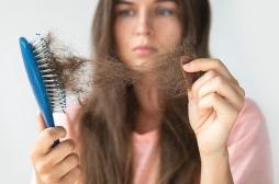 Le stress engendré par la Covid-19 peut-il nous faire perdre nos cheveux?
