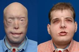 Le pompier greffé du visage mène une vie normale