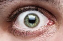 DMLA : un traitement expérimental aveugle 3 patientes
