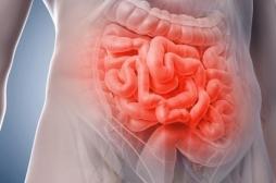 Le risque de maladies inflammatoires de l'intestin augmenté par certains anti-diabétiques