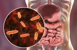 Vers intestinaux : agir sur la flore intestinale pour les prévenir