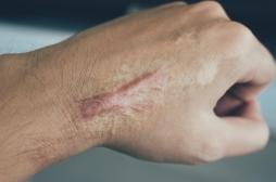 Comment éviter les cicatrices trop visibles ?