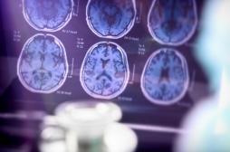 Maladie d'Alzheimer : la piste d'un traitement basé sur les cellules immunitaires se confirme