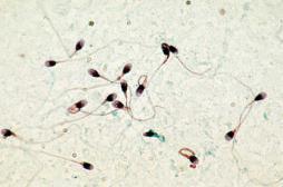 Pesticides : craintes sur le sperme des ados exposés