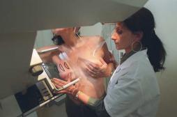 Cancer du sein : 15 000 patientes ont bénéficié de la