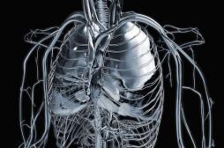 Cancer du poumon : les non-fumeurs de plus en plus victimes